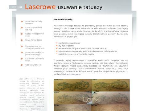 Laserowe usuwanie tatuazu Lublin